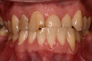 Partial anterior cross-bite with damage to front teeth.
