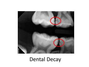 Pediatric dental decay Dr Peter G. Lemieux